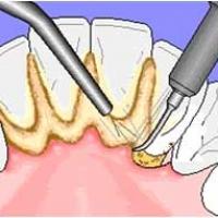 Очистка зубов от налета