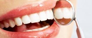 Центр отбеливания зубов
