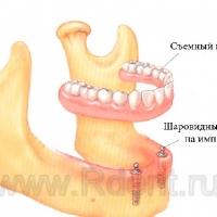 Протезирование нижней челюсти