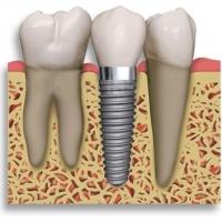 Способ восстановления зуба
