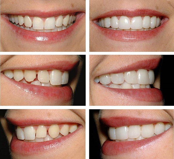 Как выбрать зубные коронки? Практические советы!