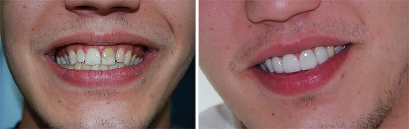 Отбеливание Зубов - Средства по уходу - OLXua