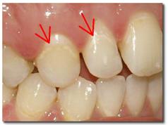 Деминерализация зубов, пример 1