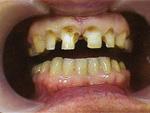 До лечения методами косметической стоматологии