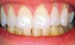 После фотоотбеливания зубов