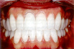 Цельнокерамические зубные коронки