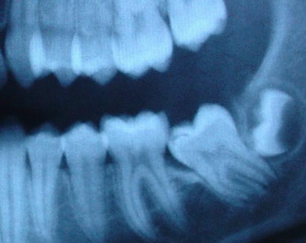 Удалить ли зуб мудрости?