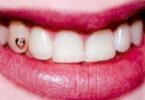 Ukrasheniya na zuby Renessans Dent