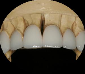 Восстановление зубов вкладками