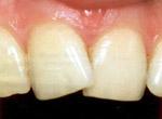 Фото зубов до лечения винирами
