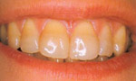 До фотоотбеливания зубов zoom 3