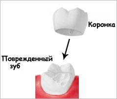 этапы при имплантации зубов