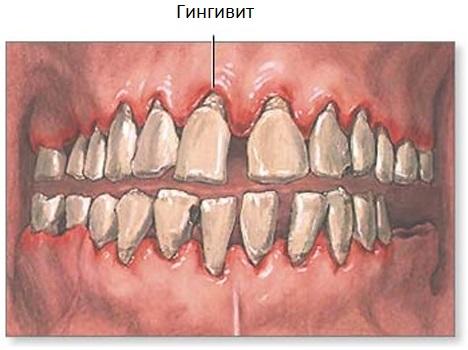 гингивит особенности лечения