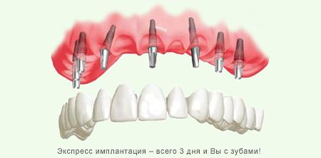 Клиника инмлантации зубов