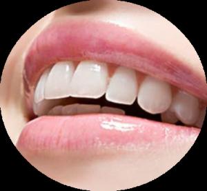 indikacia_zubnogo_nalyota
