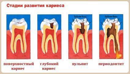 Переодичность посещения стоматолога