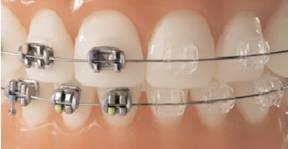 На приеме у врача ортодонта выберите брекет систему