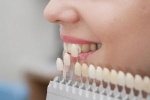Микропротезирование зубов - виниринг