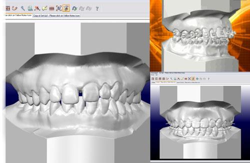 3d моделирование в стоматологии