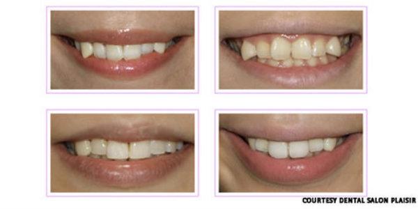 кривые зубы клыки