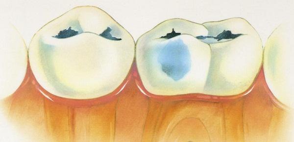 образование бактерий в полости рта