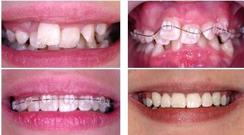 ортодонт сапфировыен брекеты