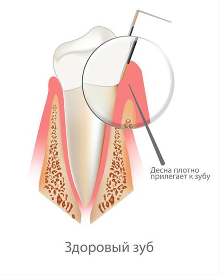 parodontit-zdorovy-j-zub