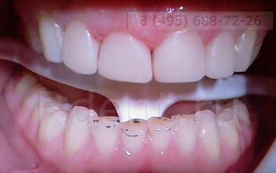 осле реставрации зубов