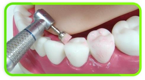 Зубная полировка