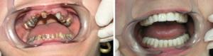 протезирование кривых зубов