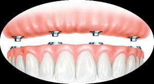 Протезирование при отсутствии зубов фото