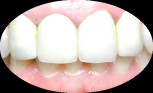 Металлокерамика зубов