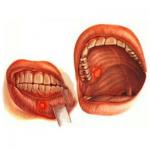 лечение рака полости рта
