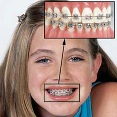 прием врача ортодонта