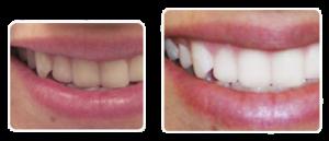 Отбеливание зубов без последствий