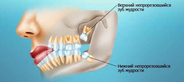 Удалить или оставить зубы мудрости