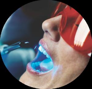 ultrazvukovoe-udalenie-zubnogo-kamna