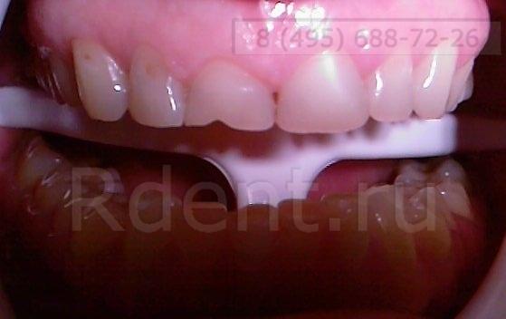 реставрации зубо