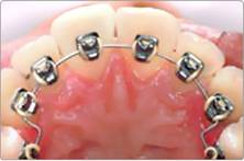 записаться на прием к врачу ортодонту в Москве