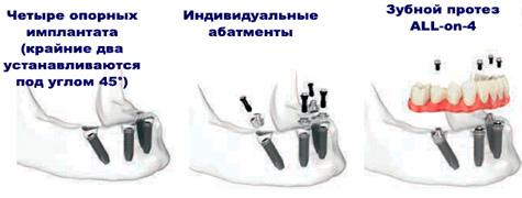 Имплантация All-on-4
