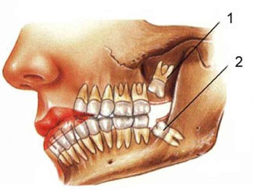 Зуб мудрости удалить или нет?