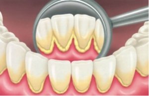 Виды зубного налёта