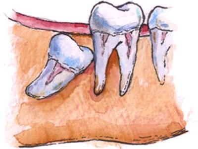 Зубы мудрости оставлять или нет?