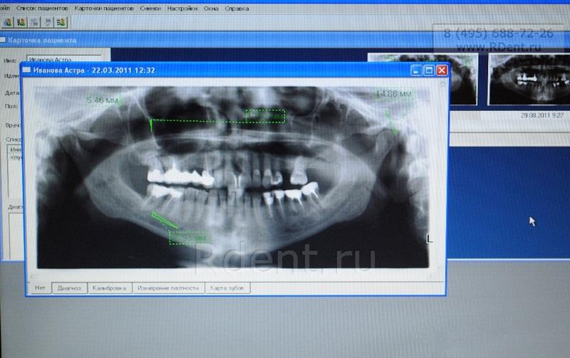 Снимок челюсти